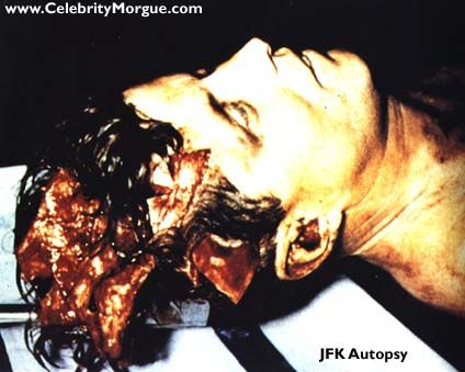 John F Kennedy Autopsy Photos