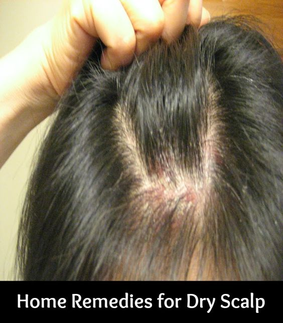 how to get rid of dry skin on scalp