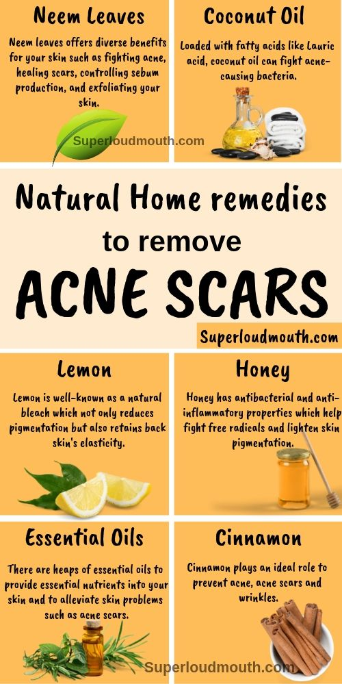 a9e58af7303a74ff39a6ce5ad05f3773 - How To Get Rid Of Back Acne Scars Home Remedies