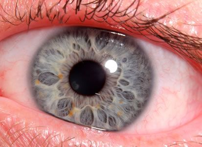 Image result for IRIDOLOGY—YOUR EYES AS THE MIRRORS OF YOUR HEALTH?