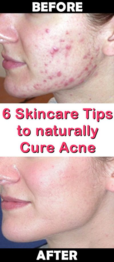 how to get rid of acne pigmentation naturally