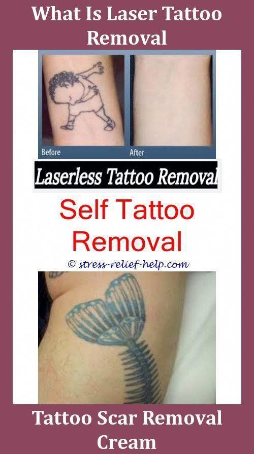 Tattoo Removal Procedure Best Tattoo Removal Doctors Rejuvi