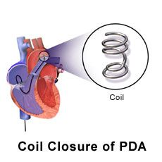 Picture of heart with coil closure of patent ductus arteriosus PDA. Though Kaylie does not actually have a coil implanted, it's a bit larger and called an amplatzer duct occluder.