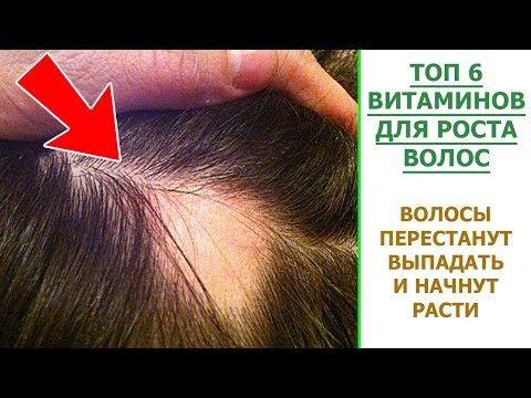 Top 6 Vitaminov Dlya Rosta Volos Kakie Vitaminy Pit Ot Vypadeniya Volos Youtube Clinic Youtube Life