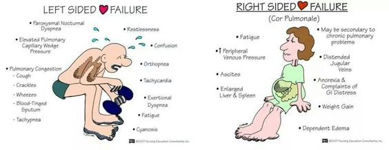 Left vs right sided ❤ failure