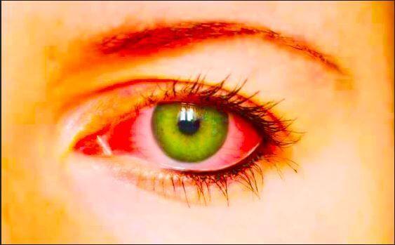 طبيبكم هل يوجد علاج نهائي لجفاف العين Dry Eye Treatment Dry Eyes Treatment