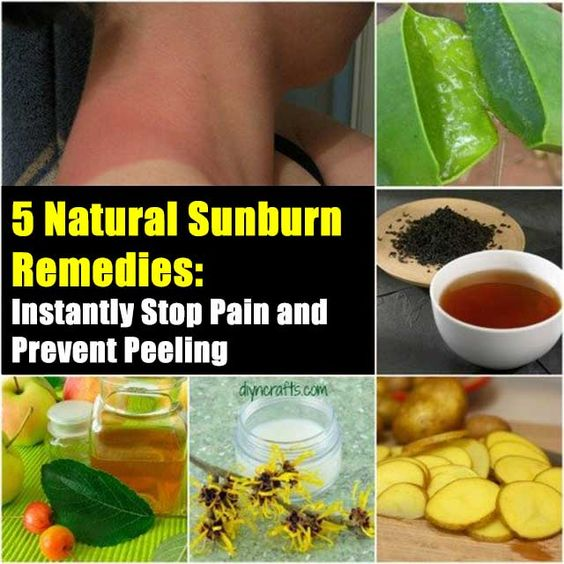 5 Natural Sunburn Remedies to Instantly Stop Pain and Prevent Peeling - SHTF Preparedness