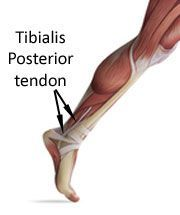 Tibialis posterior tendonitis is a degenerative condition of the Tibialis Posterior tendon which travels behind and then below the inner ankle bone