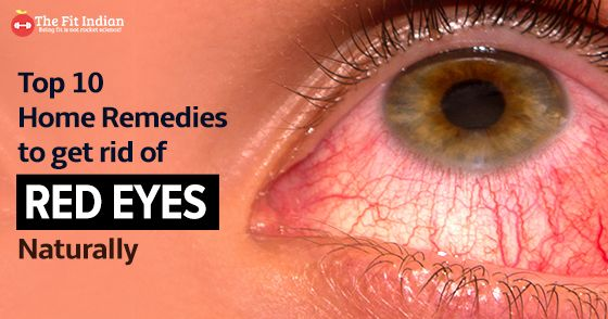 Don T Rub Your Eyes Learn The Common Causes Of Bloodshoteyes And The Remedies For It Thefitindian Bloodshot Eyes Remedies Eye Care