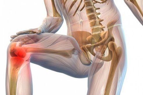 Creșterea articulației, Artroza de grad 1 bilateral a genunchiului