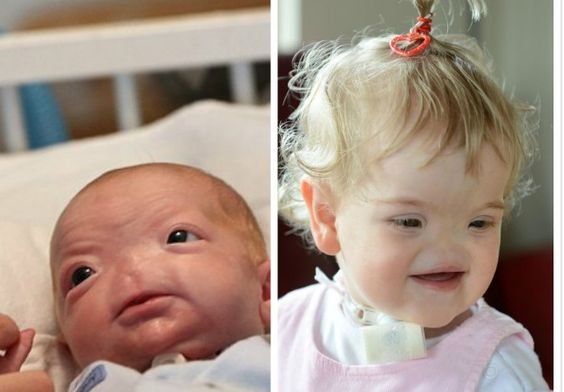 英、美兩缺鼻寶寶 父母不放棄助其快樂成長 - https://kairos.news/46078