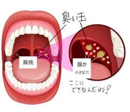 匂い 玉 腺 扁桃