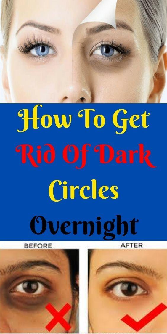 acb93cfaa44195850c4df3848ec5dfca - How To Get Rid Of Black Eyes From No Sleep