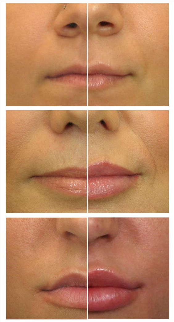 YOUR LIPS SPEAK VOLUMES. They pout when sad, smile when happy and pucker up to kiss. All of this movement combined with aging (lips thin as we get older) may have you seeking a volumizing lip treatment. Dermal filler is used to create or restore volume. Treatment is completed in less than 30 minutes, including the period required to numb the lip area to ensure your comfort. Each patients' needs are unique, with some opting for a subtle, natural enhancement, and others seeking to 'amp up the v...