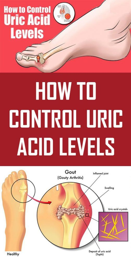 How to Control Uric Acid Levels