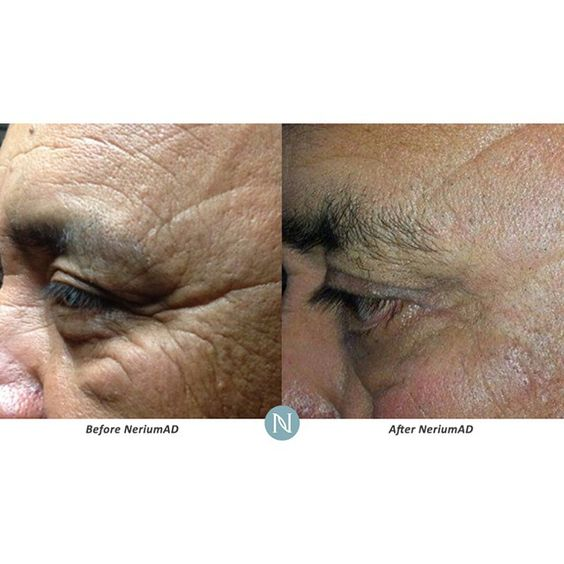 Most people get so excited when they see results like this. Imagine what results like this would mean for you! Http://BillKiefer.biz #Nerium #makethechange #success #itworks #whatareyouwaitingfor #nomorewrinkles #Amazing #thanksnerium #guaranteed #realresults #antiaging #facelift #nosurgery