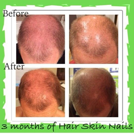 Results from It Works hair skin and nail product! Become a loyal customer and order your today!  www.sarahlamarlere.myitworks.com  #itworks #productsthatwork #hairskinnails