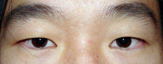Gerçek siyah gözler mevcut değildir; o kadar koyu kahverengi gözler vardır ki, öğrenci ile iris arasında normal ışıkta ayırt etmek zorlaşır.