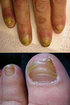 Грибок на ногтях симптомы и лечение фото