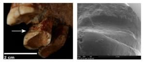 Neanderthals Used Toothpicks to Alleviate the Pain of Diseases Related to Teeth, Suc
