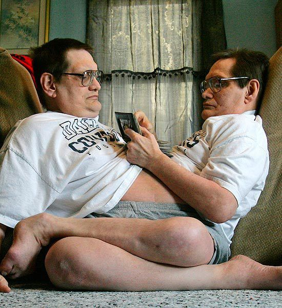 Living as One    The life expectancy for conjoined twins who are unable to be separated strongly depends on what organs they share. Conjoined twins that share a heart for example have a low survival rate. Ronnie and Donnie Gaylon are currently the world's oldest living conjoined twins at 61 years old. They have separate stomachs, lungs, and hearts, but share one large intestine and a single set of male reproductive organs. Their longevity is a medical miracle by itself