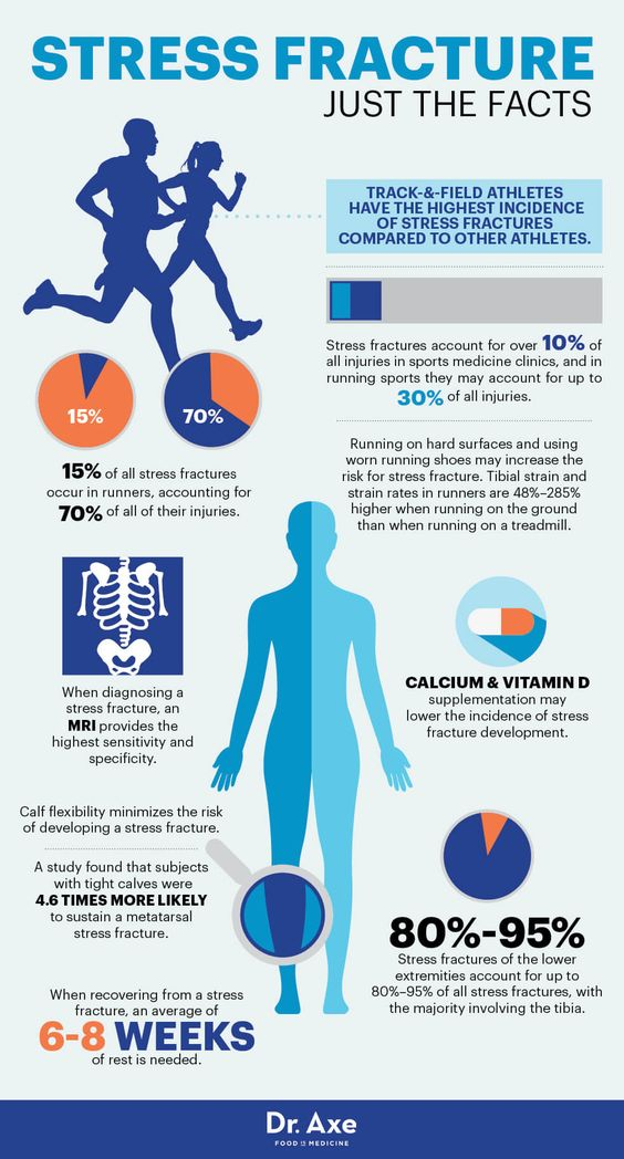 Stress fracture facts - Dr. Axe http://www.draxe.com #health #holistic #natural