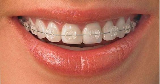 Adult Orthodontics: Straight Talk on Straight Smiles: