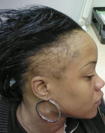 Hair Bald Spots Wigs For Women Natural Hair Vs Weave Does