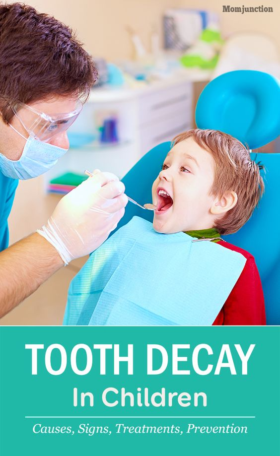 Tooth Decay In Children - Causes, Signs, Treatments And Prevention