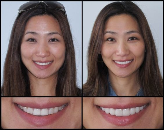 We custom-design each and every porcelain veneer to match our patient's needs both aesthetically and functionally. Minor defect corrections and total smile makeovers can be achieved through this. This patient is an animator who travelled 500 miles from her home in Silicon Valley just to be seen by Dr. Jamie Sands. She felt that her …