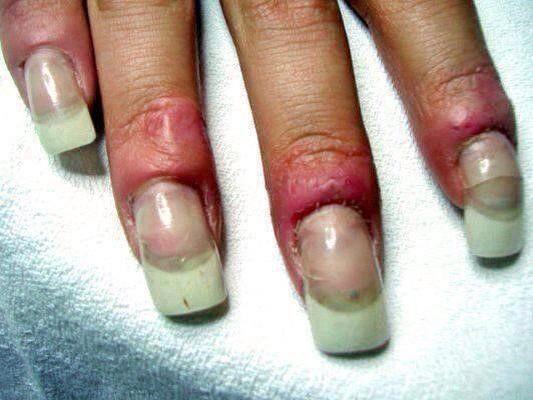 Bad Technique Trapped Moisture Visible Air Bubbles Etc Causes Irreversible Nail Fungus Gel Manicure Nails Liquid Gel Nails Manicure