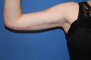 Brachioplasty (arm lift) is plastic surgery of the arms to remove excess skin and fat of the arms.  A have actually started putting the scar a little lower on the arm recently.