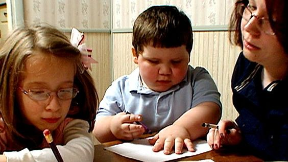 Rare Genetic Disorder Plumps Up Toddler | Suddenly, The o ...