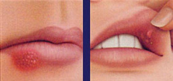 ağız ve dil yaraları nasıl geçer