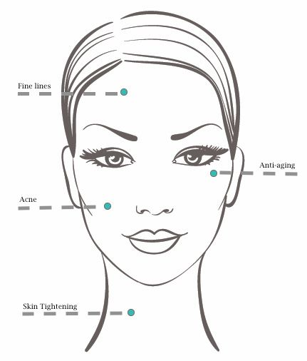 Is Mesotherapy Treatment A Good Idea