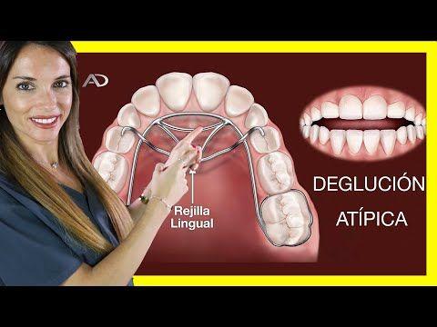 Pin En Ortodontia