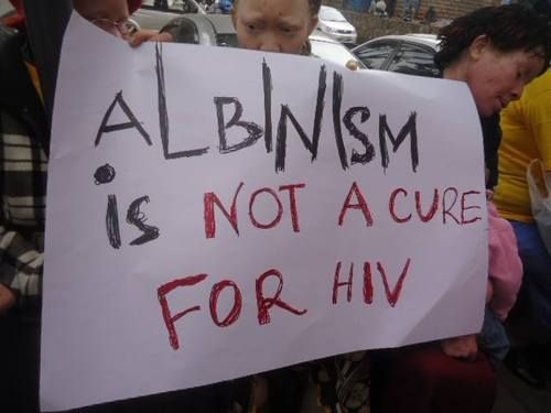 Image result for albinism cure hiv