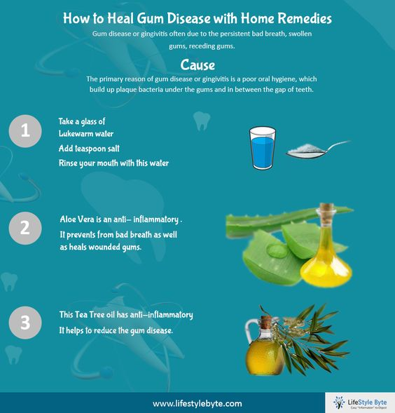 http://www.lifestylebyte.com/how-to-heal-gum-disease-with-home-remedies/
