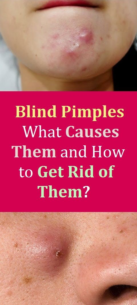 Blind Pimples What Causes Them And How To Get Rid Of Them Blind Pimple Pimples Under The Skin Hard Pimple Under Skin