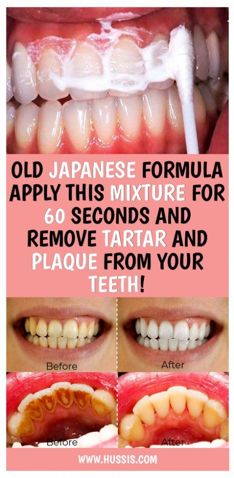 OLD JAPANESE FORMULA APPLY THIS MIXTURE FOR 60 SECONDS AND REMOVE TARTAR AND PLAQUE FROM YOUR TEETH! #teeth #health