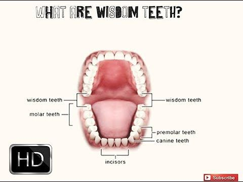 Wisdom Tooth Extraction Vlog 1 Wisdom Tooth Extraction Tooth Extraction Care Wisdom Teeth