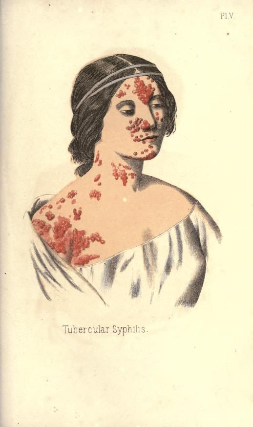 """ Tubercular Syphilis."" From: A treatise on gonorrhoea and Syphilis, 1867."
