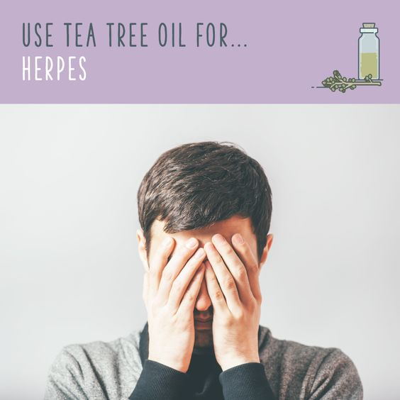 Tea Tree Oil For Herpes   Tea tree oil is one of the most popular and natural ways to control herpes outbreaks. Use an eyedropper to apply tea tree oil to the affected area two to three times a day. If you've never used tea tree oil, you might start with a diluted solution at first to see how your skin will react. Always follow your doctor's advice before deciding on a course of treatment for herpes.