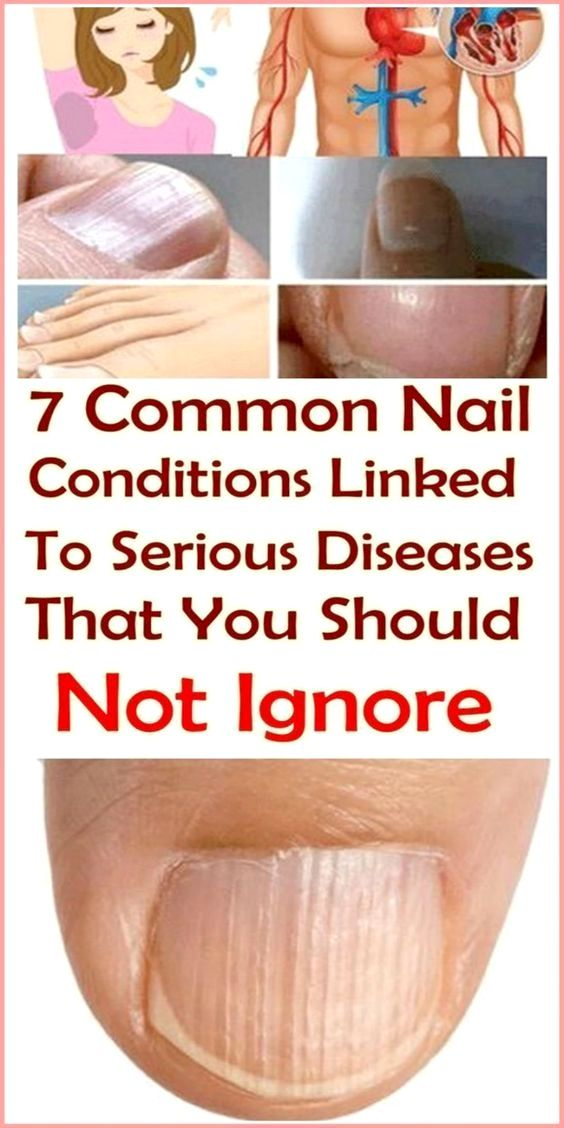 Pin By Syed Irshad Ali On Sugar In 2020 Nail Conditions White Nail Beds Honey And Lemon Drink