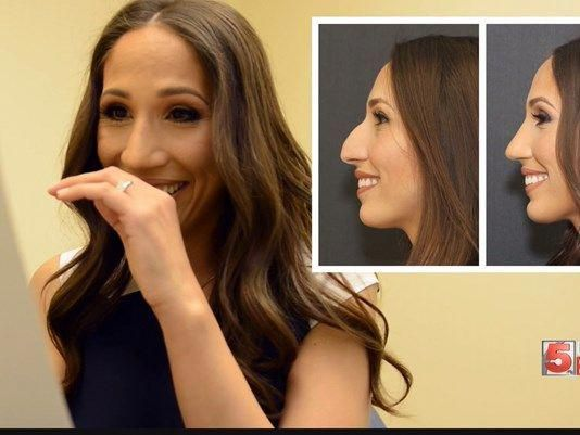 See This Woman S Beautiful Results One Month After Her Rhinoplasty Surgery Cosmeticsurgery Rinoplastia Ideias De Fotos Cirurgias