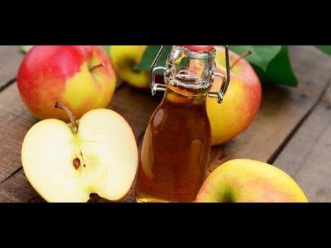خل التفاح للتخسيس Apple Cider Vinegar Benefits Apple Cider Vinegar Drink Apple Cider Vinegar