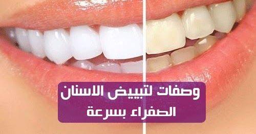 وصفات لتبييض الاسنان الصفراء بسرعة يبدو أن الكثيرين منا يرغبون في الحصول على ابتسامة بيضاء نعم سيدتي يمكنك تبييض ا Convenience Store Products Convenience Store