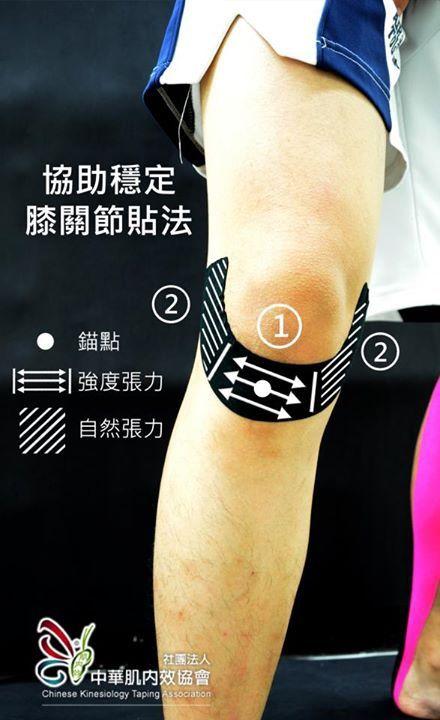 協助固定膝關節貼法