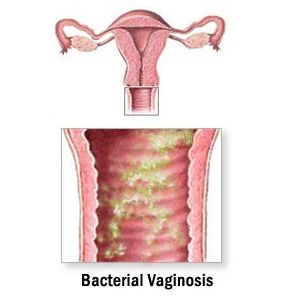 Natural Treatments For Recurring Vaginal Bacterial Infections