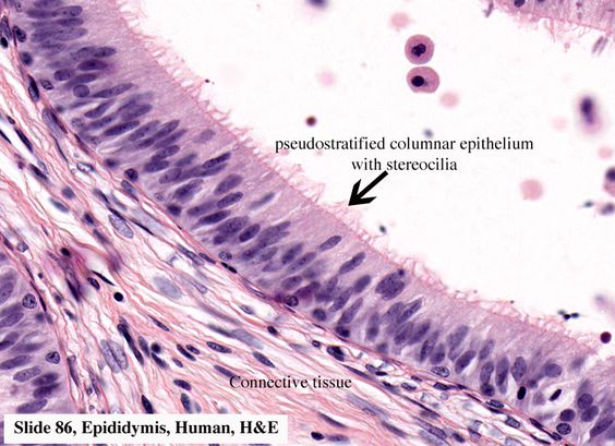 simple cuboidal simple ciliated columnar pseudostratified